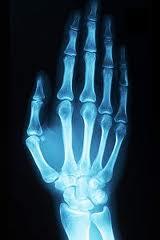 xray hand