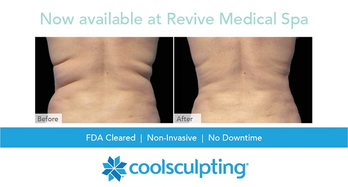 Coolsculpting Revive Medical Spa